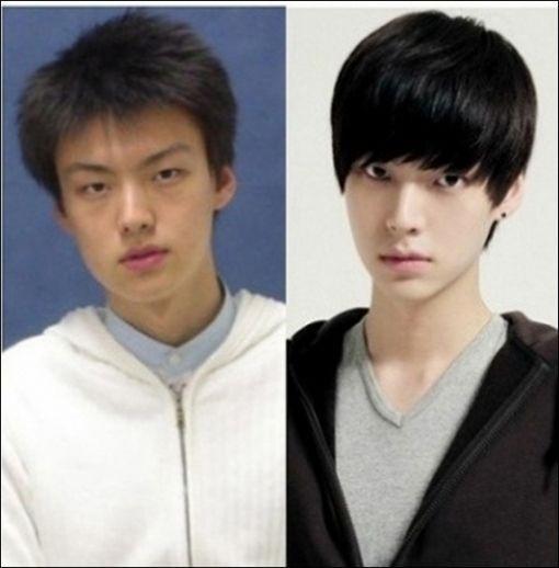 韩国人整容前后对比 多图 爱美丽小组