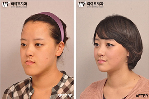 韩国人整容前后对比 多图